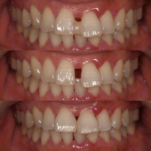 歯ぎしり 原因
